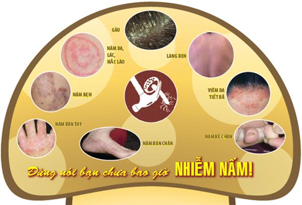 Bệnh nấm da và biện pháp phòng trị hiệu quả 2