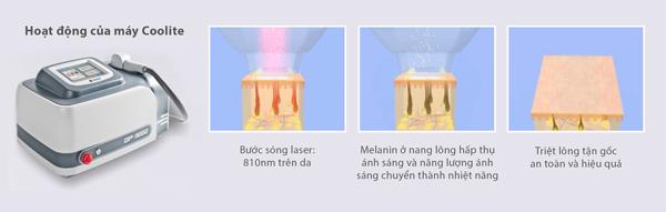 Công nghệ triệt lông lạnh vùng nách hiệu quả nhất 2