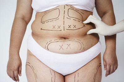 Nguy hiểm khi phẫu thuật thẩm mỹ giảm mỡ bụng 1