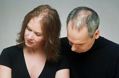Mỹ phẩm trang điểm tóc dành cho tóc mỏng và hói đầu 2