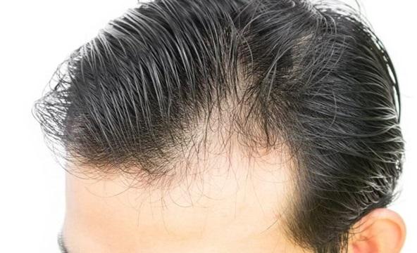 Hội chứng rụng tóc mùa cuối năm tấn công người bận rộn