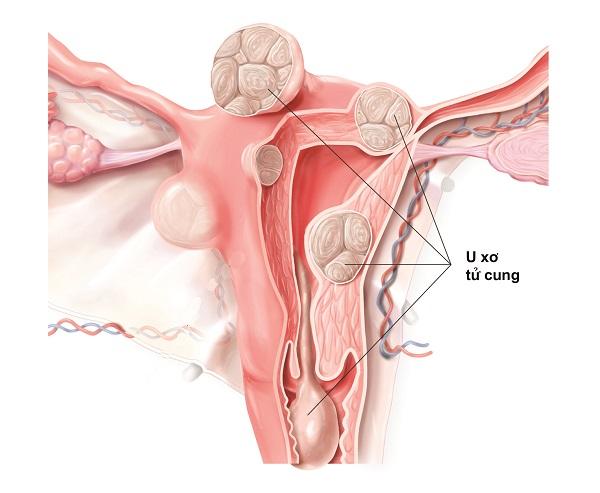 Kết quả hình ảnh cho U xơ tử cung