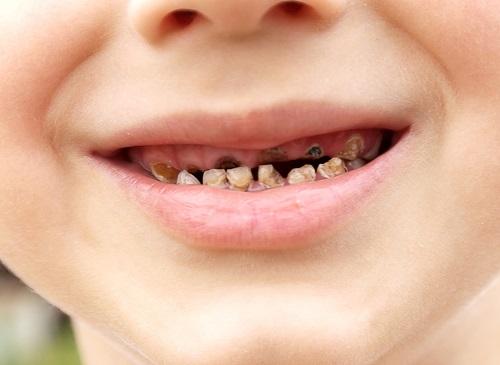 5 tác hại khôn lường nếu bé lười đánh răng mẹ Việt cần phải biết - Ảnh 4.