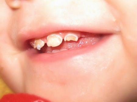 5 tác hại khôn lường nếu bé lười đánh răng mẹ Việt cần phải biết - Ảnh 6.