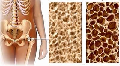 Lý dophụ nữ cần phòng ngừa loãng xương từ tuổi 30 2