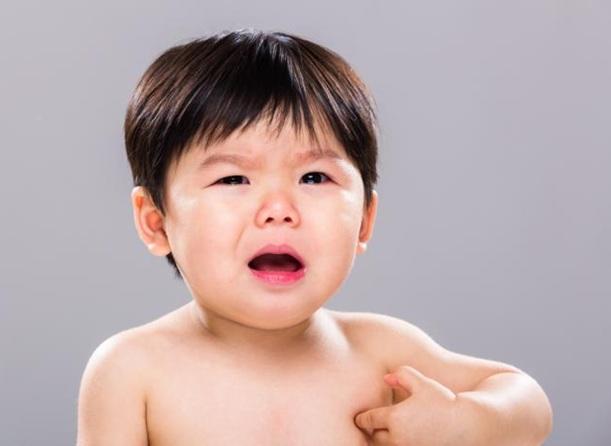 Dị ứng ở trẻ nhỏ - Những điều mẹ cần biết 3